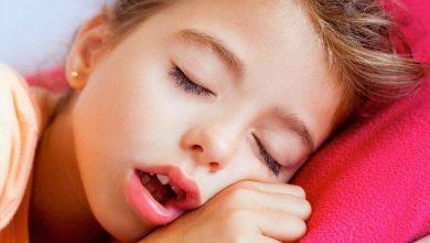 لحمية الانف عند الأطفال