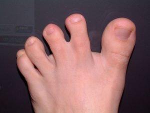 الأصابع الملتصقة