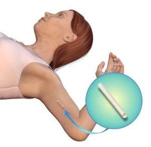 موانع الحمل وتأثيرها السلبي على الهرمونات