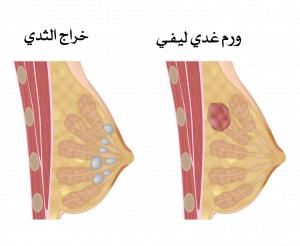 تكتلات الثدي و الأورام الحميدة