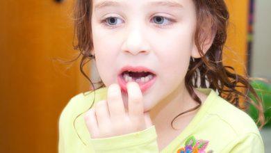 سقوط الأسنان عند الأطفال