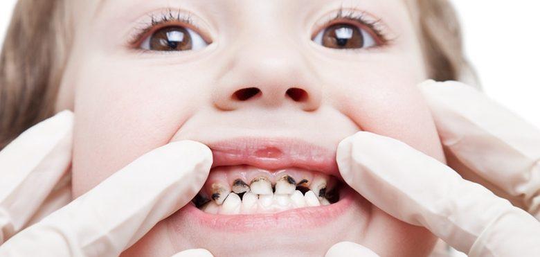 أسباب تسوس أسنان الأطفال