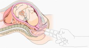 توسيع عنق الرحم باليد