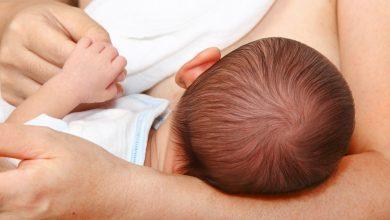 علاج تشقق الحلمتين أثناء الرضاعة