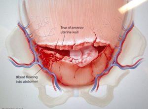 أعراض انفجار الرحم أثناء الطلق