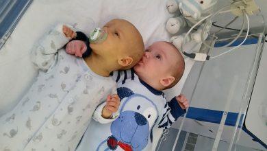 هل اللمبة النيون تعالج الصفراء عند الرضع؟