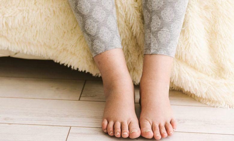 جلطة الساق بعد الولادة القيصرية
