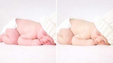 تغير لون بشرة المولود