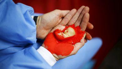 متى يستعد الرحم للحمل بعد الإجهاض؟
