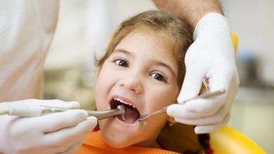 علاج التهاب اللثة عند الأطفال