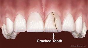 خلع الأسنان للأطفال