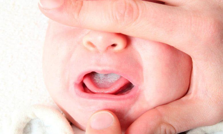 فطريات الفم عند حديثي الولادة