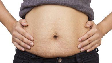 الكرش بعد الولادة القيصرية