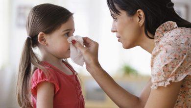 علاج نزيف الأنف عند الأطفال