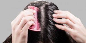 علاج قشرة الرأس
