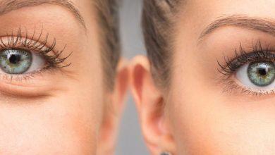 علاج الجيوب تحت العين